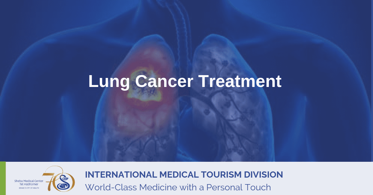Lung Cancer Treatment Options in Israel | Sheba Medical Center
