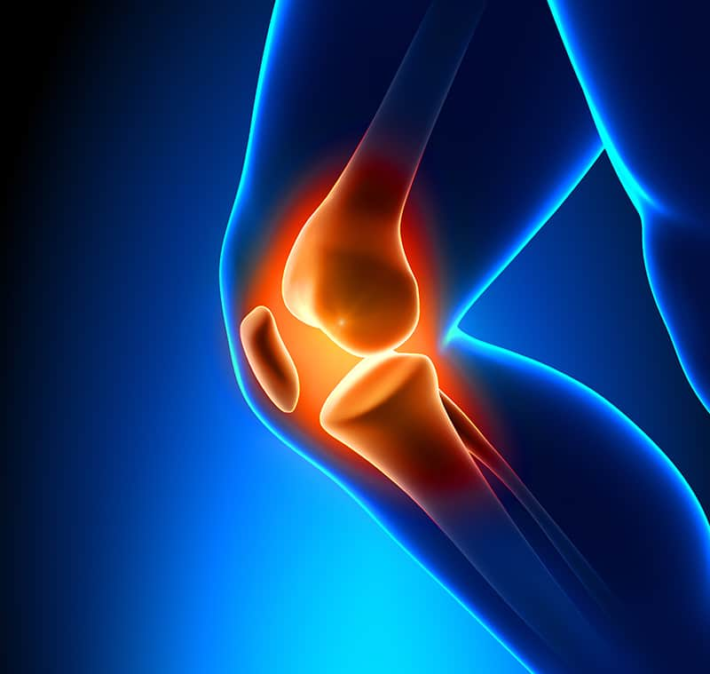 knee replacement in Israel