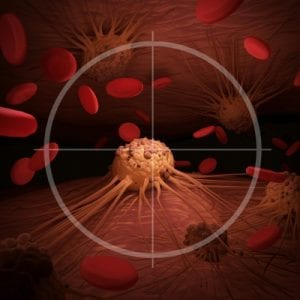 CAR-T Therapy for Cancer